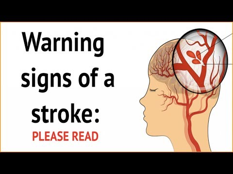 Warning Signs Of A Stroke - Please Watch