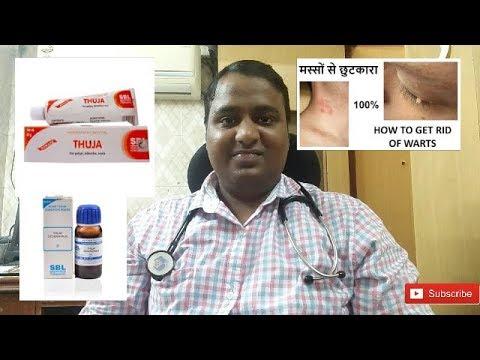 warts homoeopathic treatment(मस्सो का इलाज)