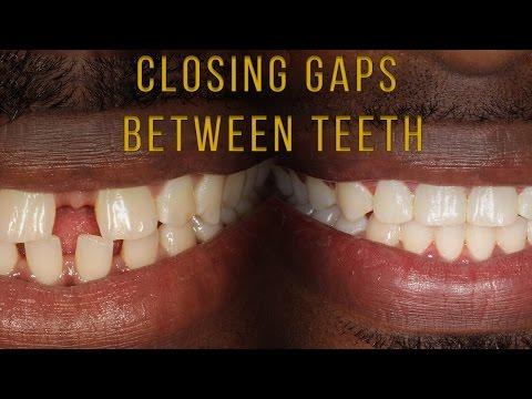 Closing Gaps Between Teeth With Braces