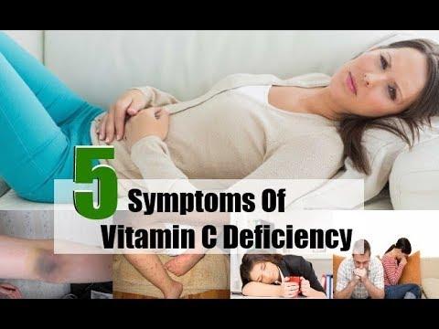 5 Top Symptoms Of Vitamin C Deficiency