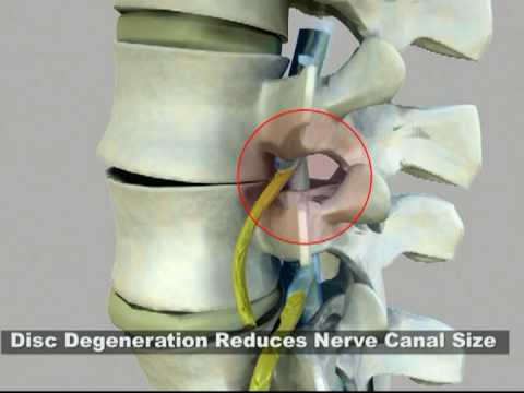 DRX9000 Spinal Decompression Therapy:: Degenerative Disc Disease