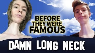 DAMN LONG NECK | Before They Were Famous | INSTAGRAM STAR