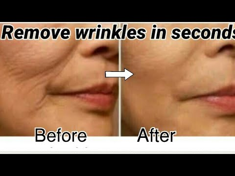 How To Get Rid Of Wrinkles Permanently / Remove WrinklesFast. Get a Smooth Skin In 5 days.