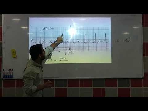 Calculate Heart Rate from ECG