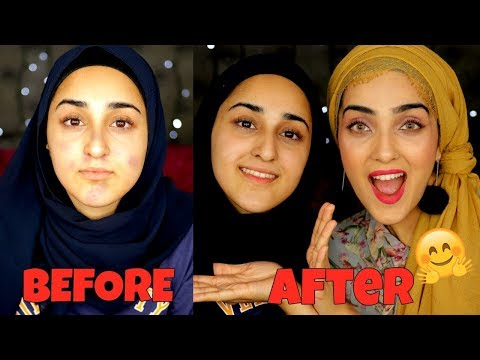 Get Rid of Acne In ONE WEEK | My Miracle Acne Treatment ! ~ Immy
