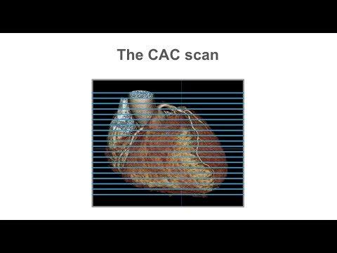 Scoring coronary artery calcium (CAC) with cardiac CT