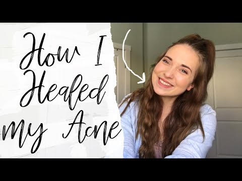 Hormonal Imbalance + How I Treated Cystic Acne Naturally | RadiantVlogs