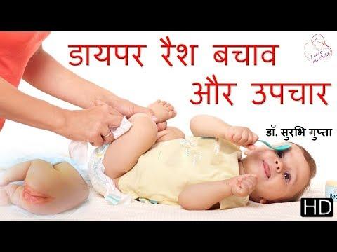 Treatment of diaper rash in hindi | डायपर रैश - बचाव और उपचार - डॉ. सुरभि गुप्ता
