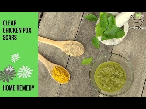 How to treat chicken pox scars - Natural remedy