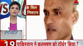 News 100: New video from Pakistan shows wound marks on Kulbhushan Jadhav
