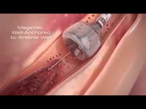 New method of Angiography Which Directly Remove Blocks In Heart.