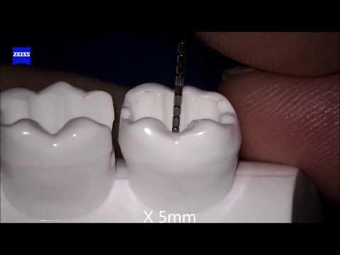 An ad hoc demonstration of polymerization shrinkage