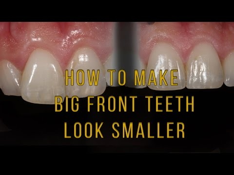What to do if one tooth looks big and long