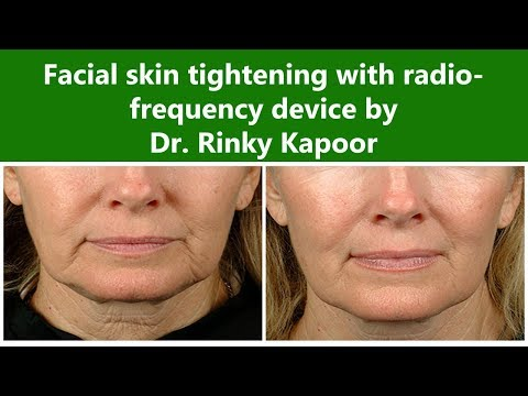 Radio-Frequency Skin Tightening for Face | The Esthetic Clinics, India