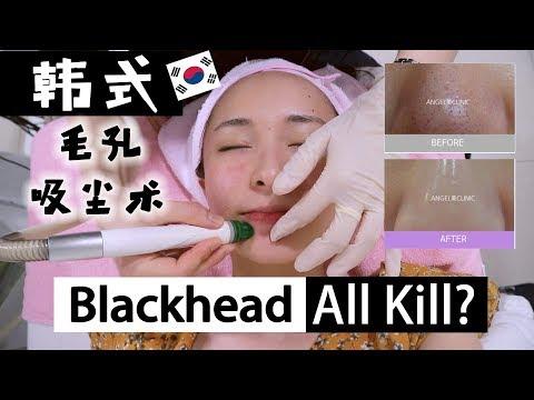 Korean Dermatology Aquapeel Review | 我去了韩国医美诊所!
