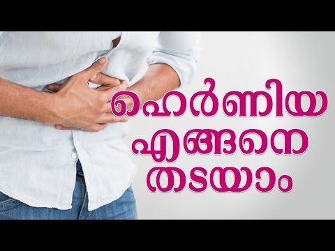 ഹെര്ണിയ എങ്ങനെ തടയാം | Hernias in Women - Symptoms and Treatments