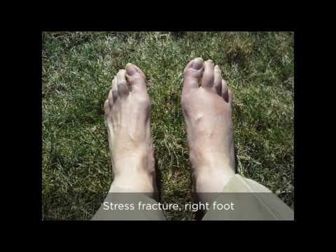 Stress fracture, metatarsal area, right foot