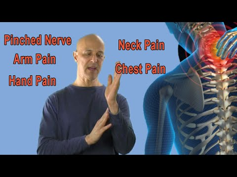 How to Find the Origin of Your Pinched Nerve (Neck Pain, Arm Pain, Hand Pain) - Dr Mandell
