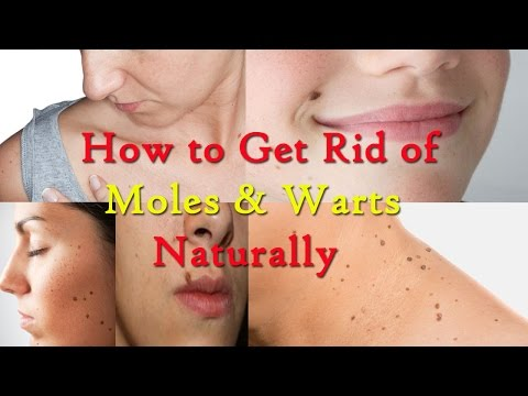 How to Get Rid of Moles and Warts Naturally || Home Remedies