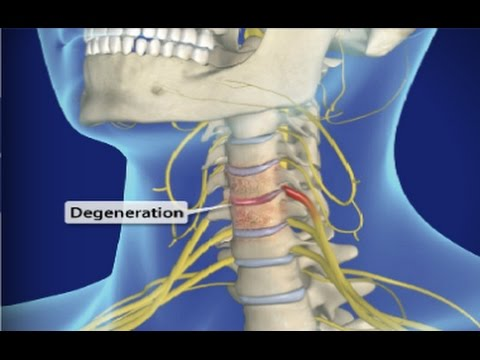 Cervical Spondylosis (Arthritis of the Neck) / Neck Pain & Pinched Nerve / Dr Mandell