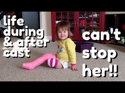 Toddler Broken Leg, Cast, & Recovery (cute 7 week summary)