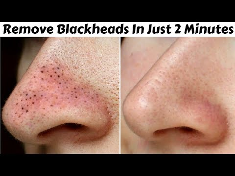 Remove Blackheads & Whiteheads in Just 2 Minutes | Best, Easy & 100% Effective Home Remedy