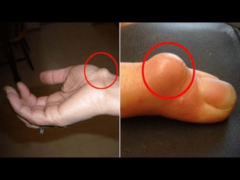 Why The Ganglion Cysts In Your Wrist Need Immediate Attention