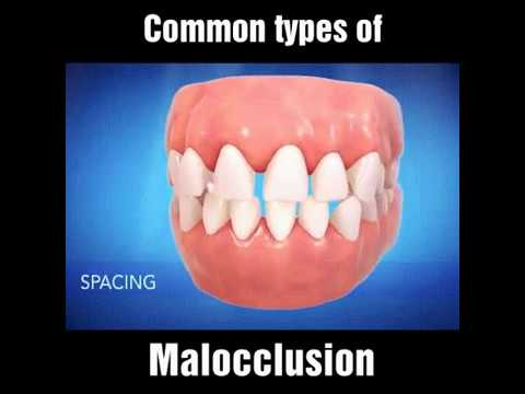 Common Types of Malocclusion - Dr. Sarabjeet Singh   Chandigarh Orthodontics