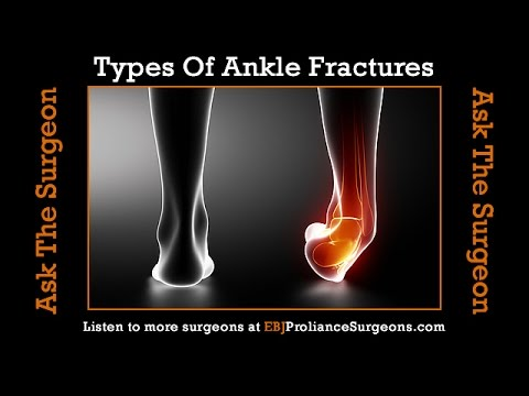 Types Of Ankle Fractures Seen By An Ankle Surgeon