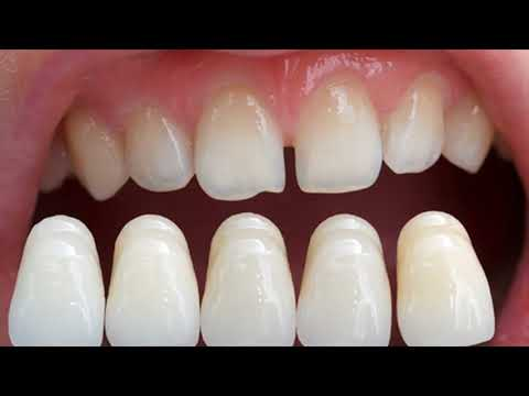 How To Fix Broken Tooth At Home - Great Ideas To Repair Cracked Or Broken Tooth At Home