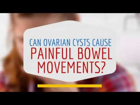Can Ovarian Cysts Cause painful Bowel Movements?