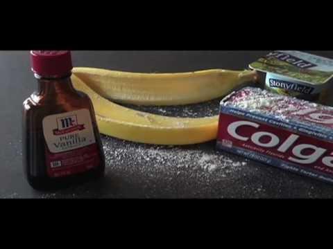 How to Treat Kitchen Burns