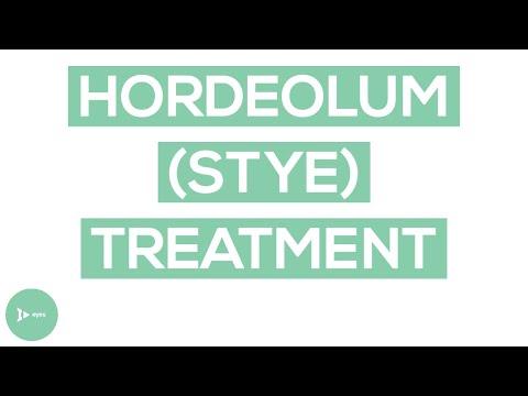 Hordeolum (Stye): Exactly How To Treat This Annoying Eyelid Condition