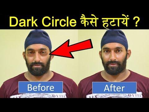 How to Remove Dark Circles Naturally ? Reasons of Dark Circle Hindi