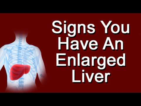 Signs You Have An Enlarged Liver