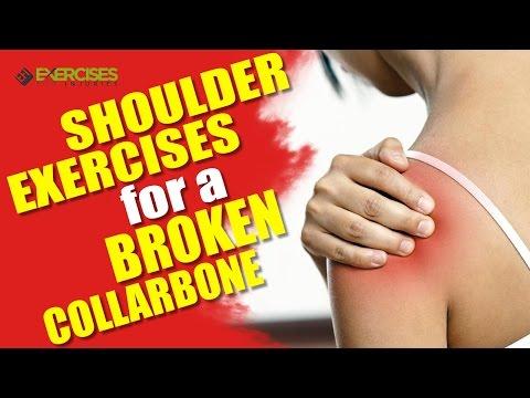 Shoulder Exercises Broken Collarbone Rick Kaselj