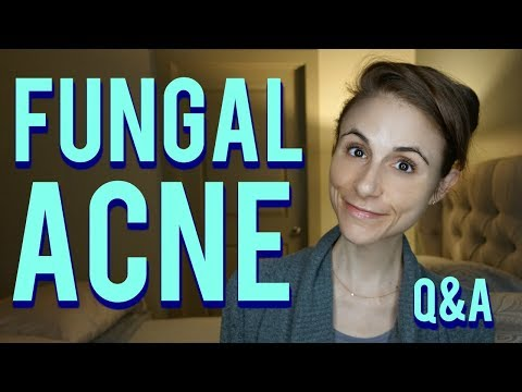Fungal acne on the face and body| Q&A with Dr Dray