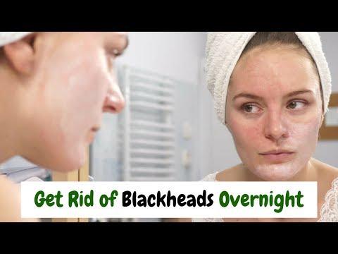 How to Get Rid of Blackheads at home - ब्लैकहैड्स से छुटकारा पाये