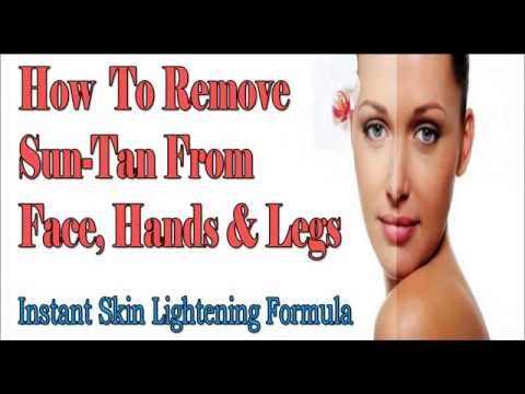 How To Remove Sun Tan From Face, Hands & Legs Instantly | Instant Skin Lightening Formula