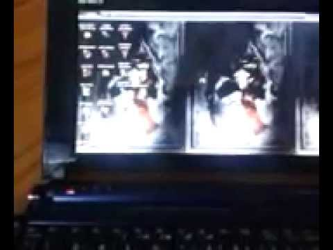 Acer Aspire One HELP! Screen flicker and scroll and fade