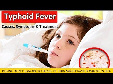 What Is Typhoid Fever, Causes, Symptoms and Treatment