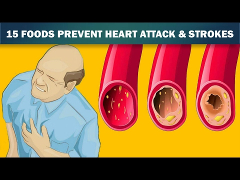 15 Foods That Unclog Your Arteries Naturally Like Magic