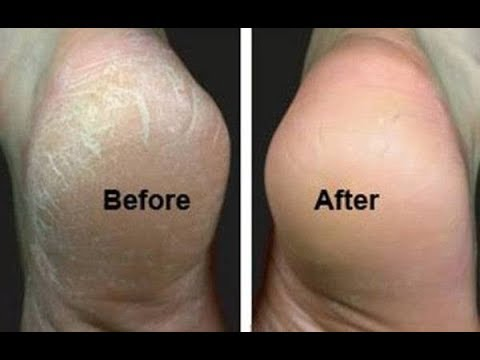 How to Get Rid of Cracked Heels in 3 Easy Steps | All About your Health