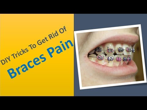 DIY tricks to get rid of braces pain - home remedies for braces pain