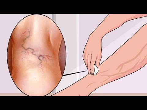 What Causes Varicose Veins And How To Treat Them Naturally