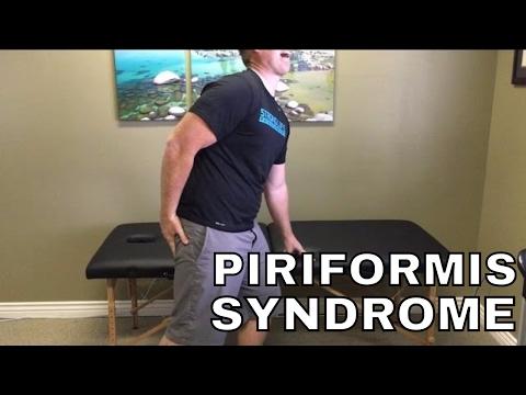 What to do for Sciatica (Piriformis Syndrome)!