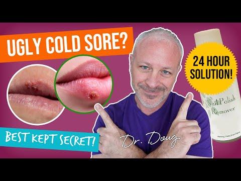 Cold Sore Cure: Nail Polish Remover Remedy!