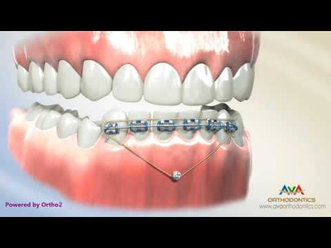 Deepbite Treatment by Temporary Anchorage Device (TAD) - Orthodontic Treatment