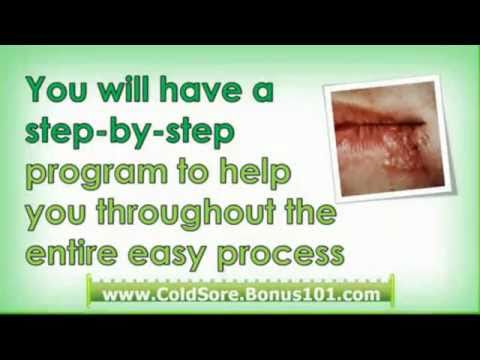 cold sores during pregnancy - home remedy for cold sore - cold sores home remedies