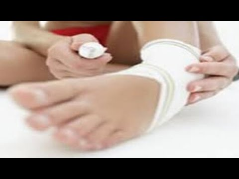 how to heal a sprained ankle fast at home - sprain treatment